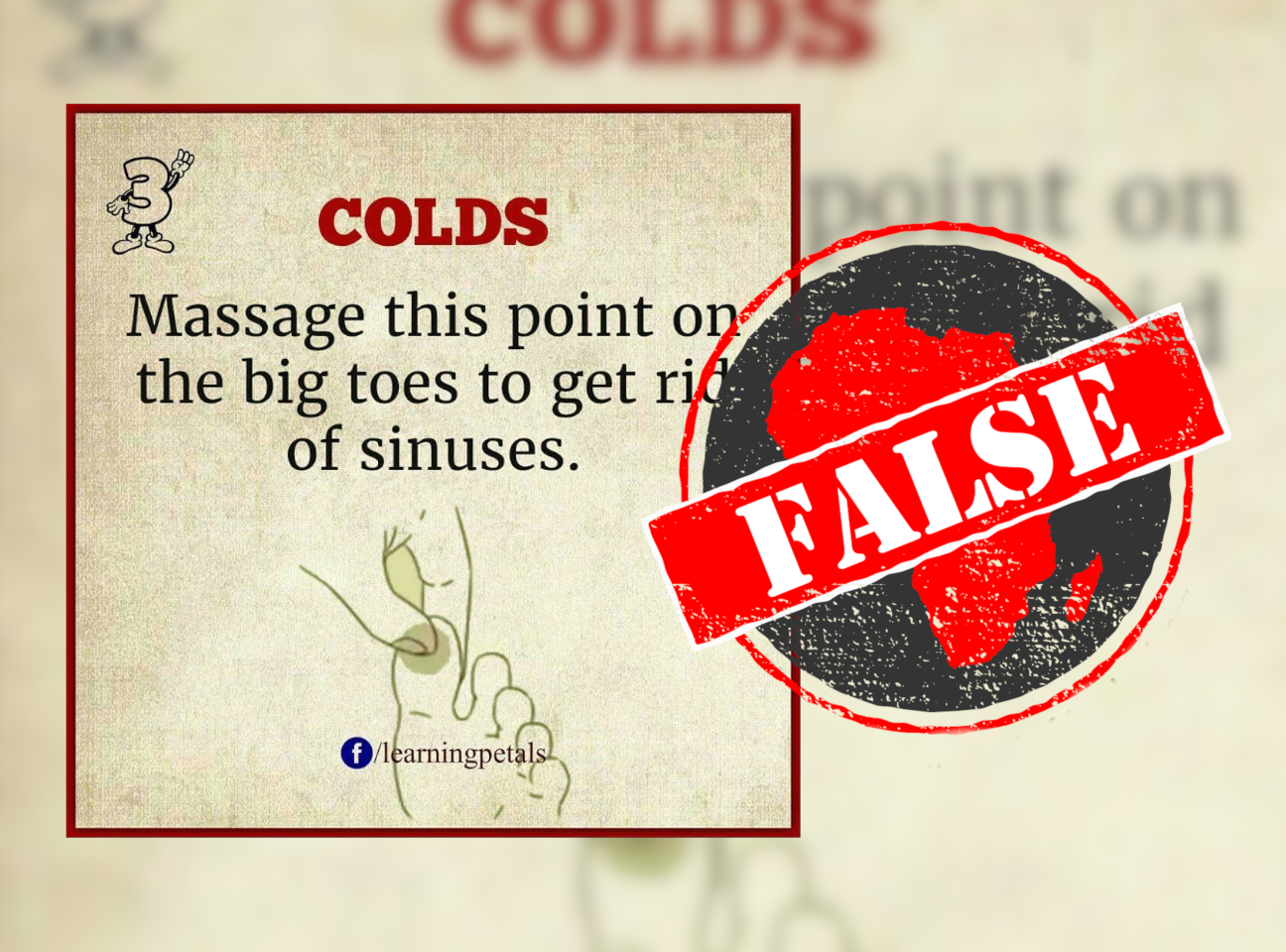Sinuses_False
